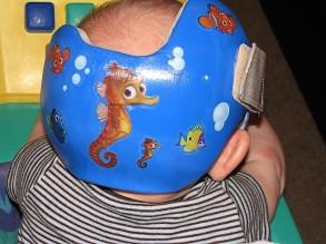 back helmet